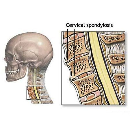 Spondylosis Causing Neck Pain