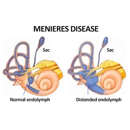 illustration shows menieres disease