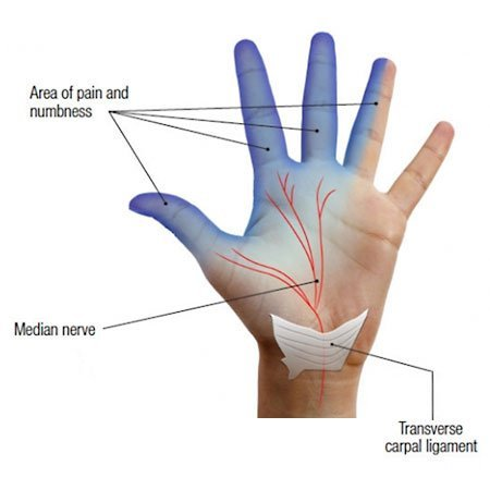 pain and numbness distribution in carpal tunnel syndrome