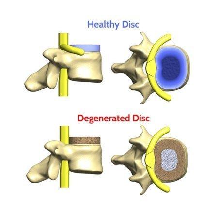herniated disc, degenerated disc and slip-disc