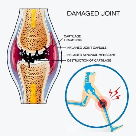 knee joint damaged treatment