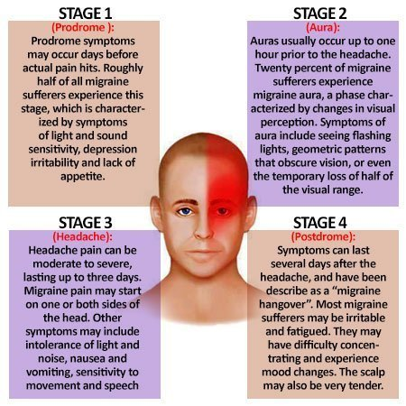 The four Aura stages of a Migraine