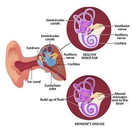 symptoms of meniere's