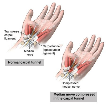 illustration of normal and abnormal carpal tunnel