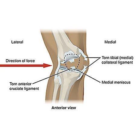chiropractic knee pain treatment