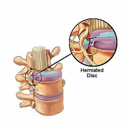 Slip-disc causing pinched spinal nerve