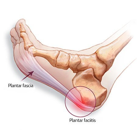 Plantar Fasciitis sites of pain