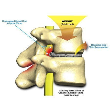 anatomy of back pain and disc degeneration