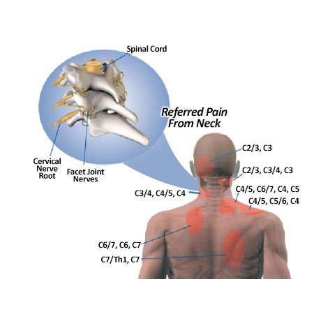 Neck pain is referred to upper back and shoulders