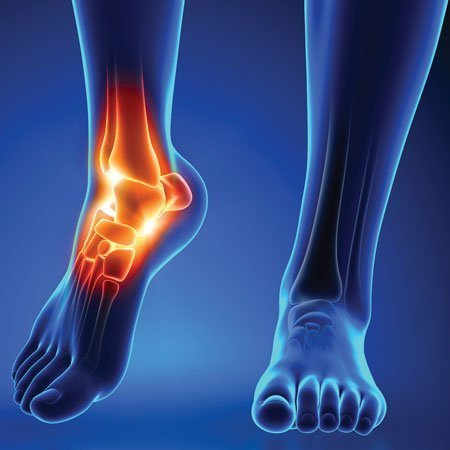 Foot pain, ankle pain and Plantar Fasciitis