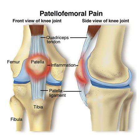 illustration of patellofemoral pain
