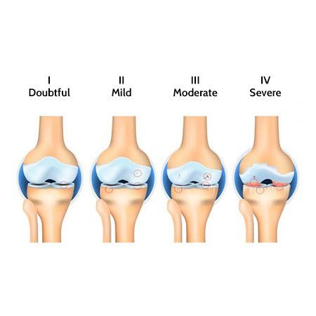 illustration express the duration to cure knee pain